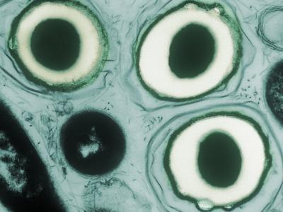 Spores of Haemophilus Ducreyi Bacteria, the Pathogen of Chancroid. Tem