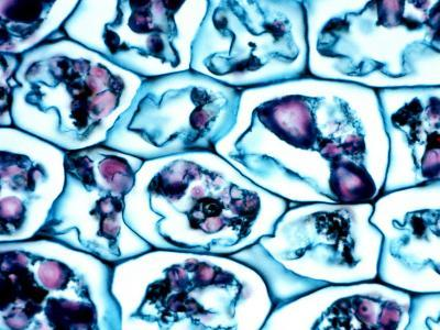 Parenchyma Cells in Potato with Starch Stained Purple