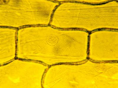 Onion Plant Cells Showing the Nucleus and Large Vacuole