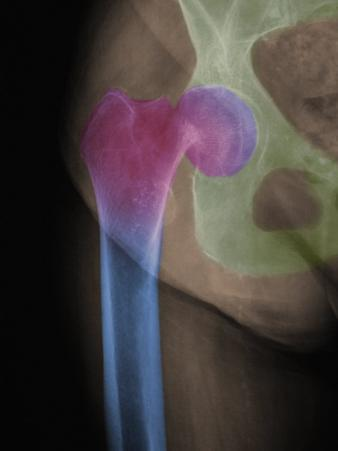 X Ray of a Subcapital Fracture of the Human Hip