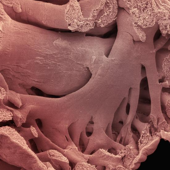 'Inside of the Atrium of the Human Heart Showing Pectinate ...