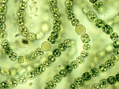 Nostoc Cyanobacteria, with Heterocysts Important in Nitrogen Fixation