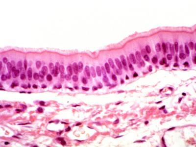 Human Trachea Ciliated Epithelium