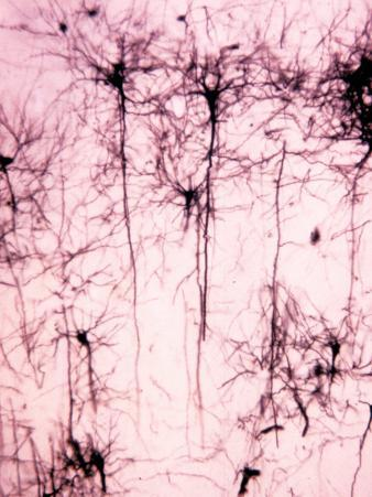 Neurons of the Cerebral Cortex Showing the Dendrites, Cell Bodies, and Axons