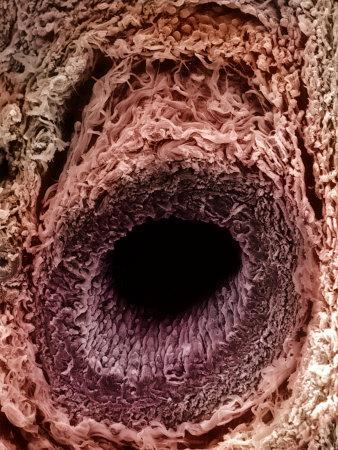 A Human Arteriole Cross-Section. Arterioles are Small Branches of Arteries