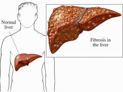 Biomedical Illustration of Cirrhosis or Fibrosis of the Human Liver, Common Among Alcoholics