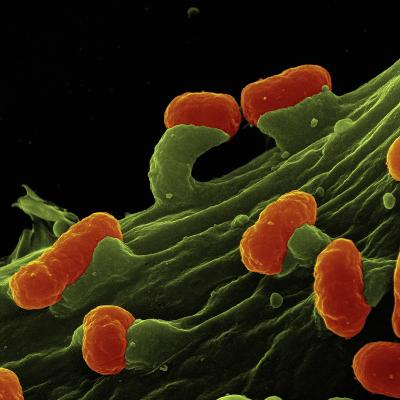 Enteropathogenic Escherichicoli Bacteria on Human Epithelial Cells