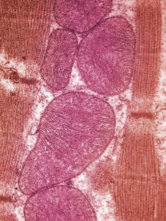 Mitochondria in the Human Atrium, Tem X78,800