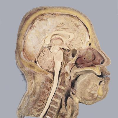 The Human Head and Brain in Sagittal Section, Revealing the Position of the Brain, Brain Stem