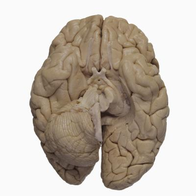 Base of the Human Brain Showing the Cerebrum, Cerebellum, and Brainstem