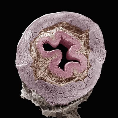 Cross-Section of the Esophagus Showing, from the Central Region Outward, the Lumen