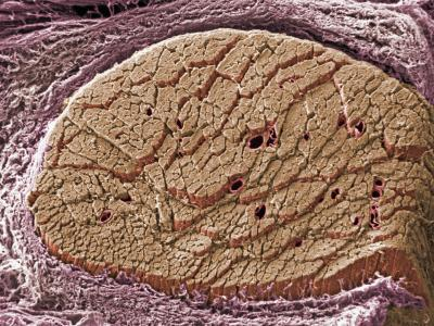 Cross-Section of Skeletal or Striated Muscle Surrounded by Connective Tissue Sheath