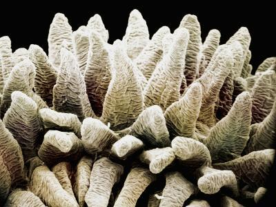 The Finger-Like Villi in the Mammal Small Intestine Mucosa Greatly Increase the Surface Area