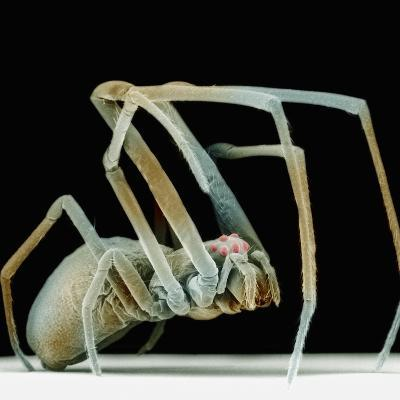 Lateral View of the Orchard Spider, Leucauge Venusta,, SEM