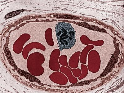 Cross-Section of a Blood Vessel That Contains a White Blood Cell and Several Red Blood Cells