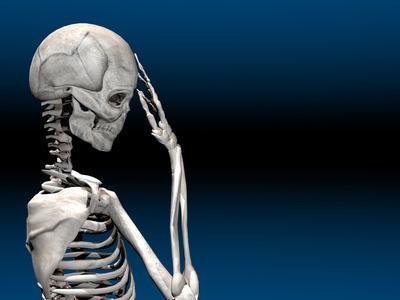 Skeleton with a Headache