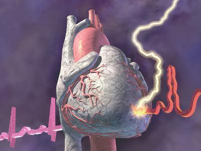 Heart Attack, Graphic Representation of Heart Attack