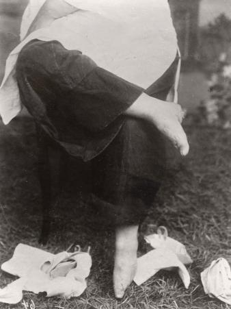 China, Woman with Small Bound Feet