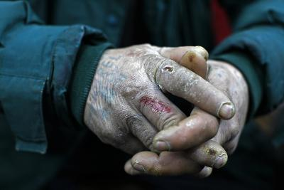 The Hands of a Homeless Man are Seen