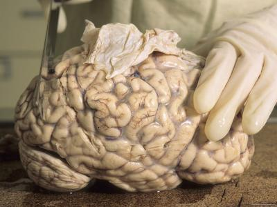 Hospital Morgue Preparing Brain for Autopsy