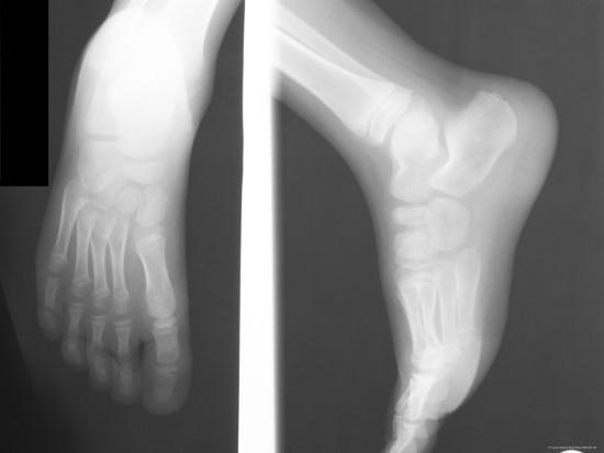 X Ray Normal Ankle And Foot Dorsal Lateral Foot Ankle Photographic