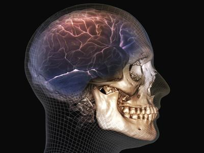 Human Skull and Brain, 3D CT Scan