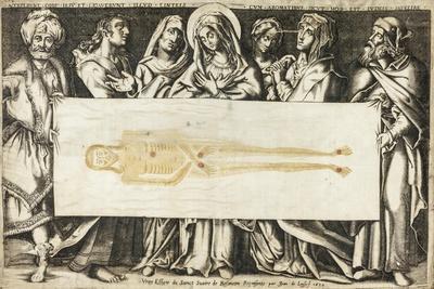 The Holy Shroud of Besançon, 1634